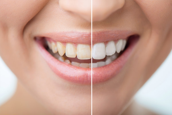 Teeth Whitening / bleaching of teeth